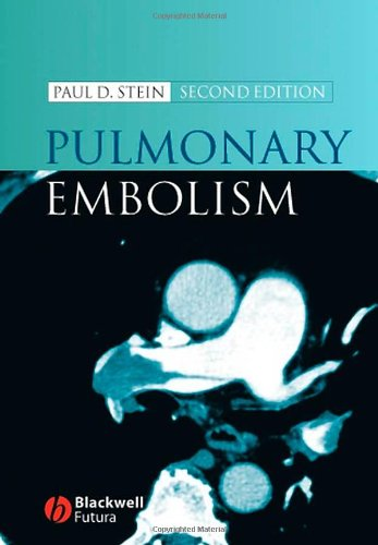 9781405138079: Pulmonary Embolism
