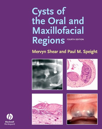 9781405149372: Cysts of the Oral and Maxillofacial Regions