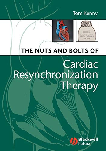 9781405153720: The Nuts and Bolts of Cardiac Resynchronization Therapy