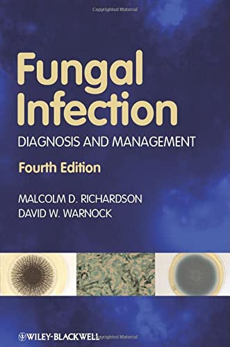 9781405170567: Fungal Infection: Diagnosis and Management