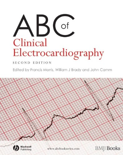 9781405170642: ABC of Clinical Electrocardiography (ABC Series)