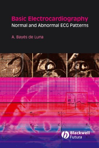 9781405175708: Basic Electrocardiography: Normal and Abnormal ECG Patterns