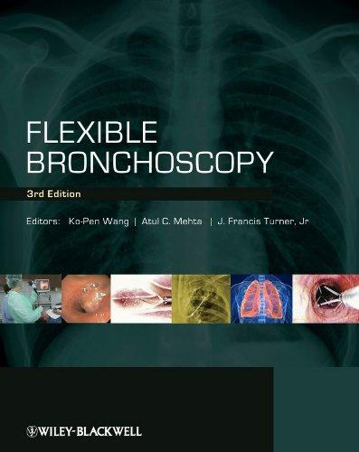 9781405175876: Flexible Bronchoscopy