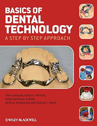 9781405178754: Basics of Dental Technology: A Step by Step Approach