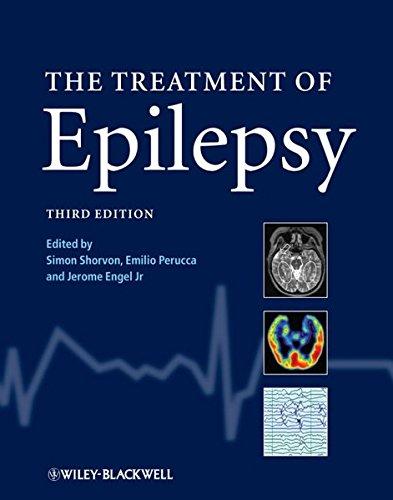 9781405183833: The Treatment of Epilepsy