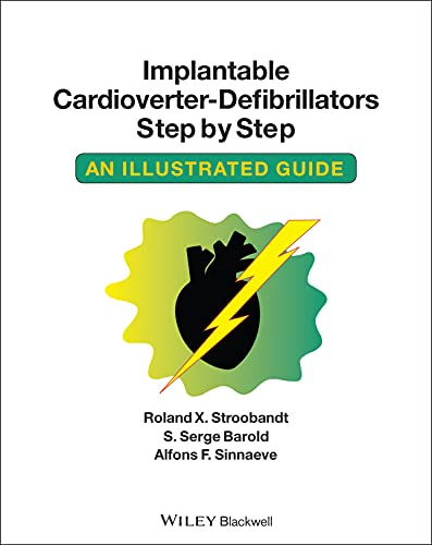 9781405186384: Implantable Cardioverter - Defibrillators Step by Step: An Illustrated Guide