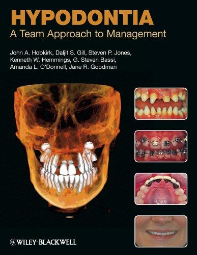 Hypodontia: A Team Approach to Management: John A. Hobkirk;