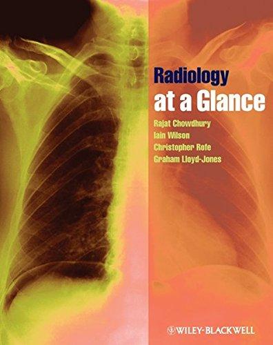 9781405192200: Radiology at a Glance