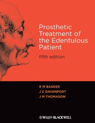 9781405192613: Prosthetic Treatment of the Edentulous Patient