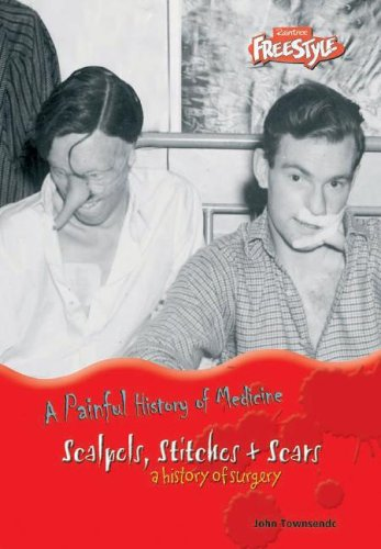 9781410913326: Scalpels, Stitches & Scars (A Painful History of Medicine)