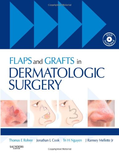 9781416003168: Flaps and Grafts in Dermatologic Surgery: Text with DVD, 1e
