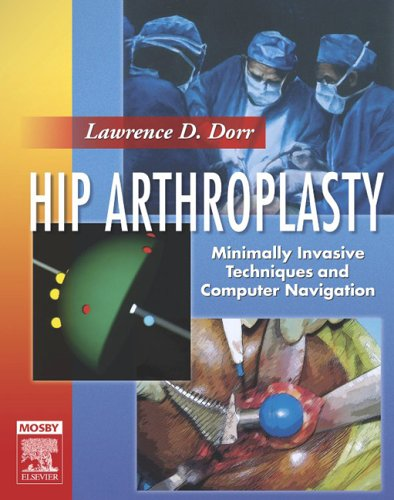 Hip Arthroplasty: Minimally Invasive Techniques and Computer: Lawrence D. Dorr