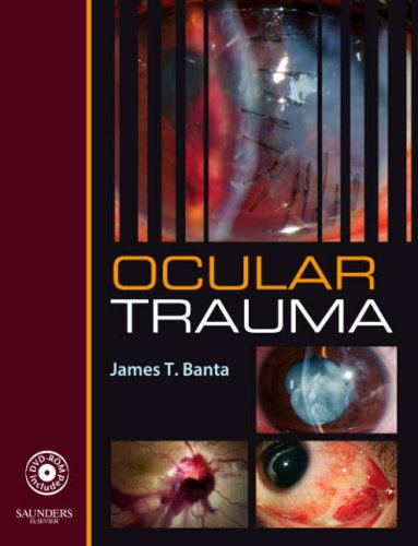 Ocular Trauma: Banta, James T. M.D.