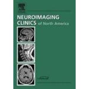 9781416027324: Ophthalmologic Imaging, An Issue of Neuroimaging Clinics (The Clinics: Radiology)
