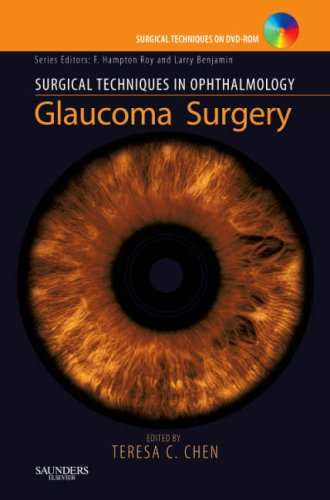 9781416030218: Surgical Techniques in Ophthalmology Series: Glaucoma Surgery: Text with DVD, 1e