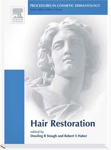 Procedures in Cosmetic Dermatology Series: Hair Transplantation: Text with DVD, 1e: Robert S. Haber...