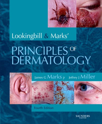 Lookingbill and Marks' Principles of Dermatology, 4e: James G. Marks