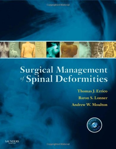9781416033721: Surgical Management of Spinal Deformities, 1e (Expert Consult Title: Online + Print)