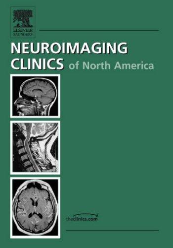 Advanced Pediatric Neuroimaging (Neuroimaging Clinics: Volume 16,