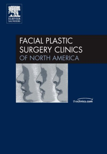 Revision Rhinoplasty, An Issue of Facial Plastic Surgery Clinics, 1e (The Clinics: Surgery): Kridel...