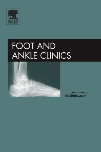 Complex Salvage of Ankle and Hindfoot Deformity, An Issue of Foot and Ankle Clinics, 1e (The ...
