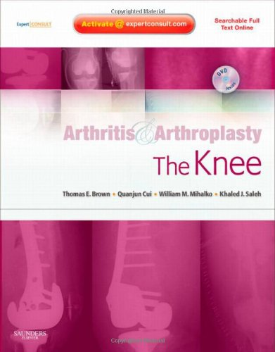 9781416049746: Arthritis and Arthroplasty: The Knee: Expert Consult - Online, Print and DVD
