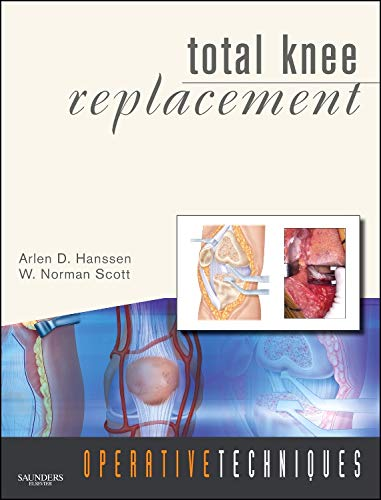 9781416049845: Operative Techniques: Total Knee Replacement: Book, Website and DVD