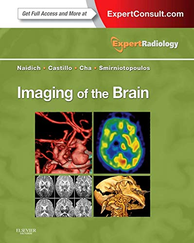 9781416050094: Imaging of the Brain: Expert Radiology Series, 1e