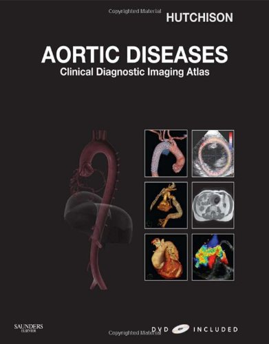 Aortic Diseases: Clinical Diagnostic Imaging Atlas with DVD, 1e (Cardiovascular Emergencies: Atlas ...