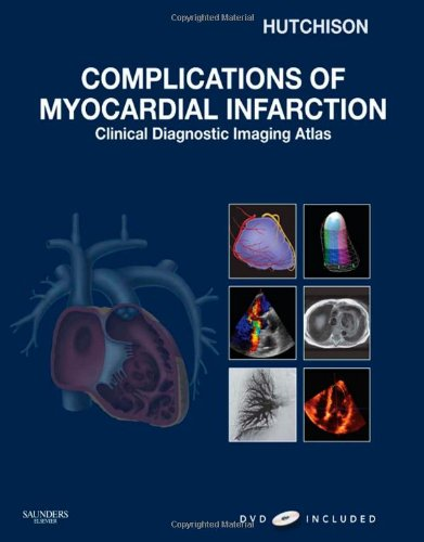9781416052722: Complications of Myocardial Infarction: Clinical Diagnostic Imaging Atlas with DVD, 1e (Cardiovascular Emergencies: Atlas and Multimedia)