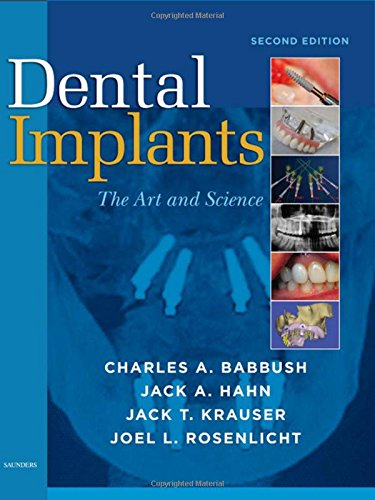 9781416053415: Dental Implants: The Art and Science