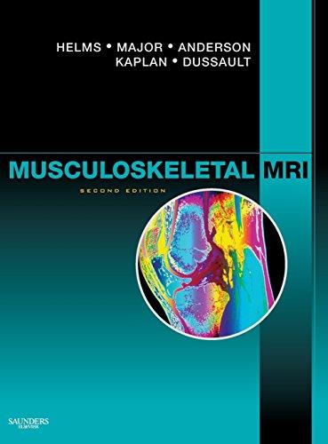 9781416055341: Musculoskeletal MRI, 2e