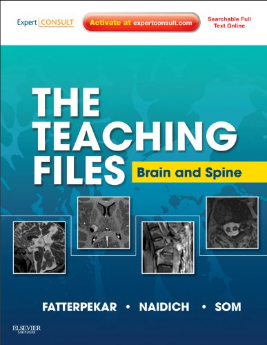 The Teaching Files: Brain and Spine: Expert Consult - Online and Print, 1e: Fatterpekar MD, Girish;...
