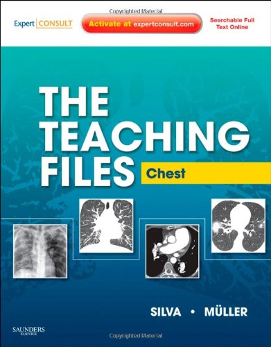 9781416061106: The Teaching Files: Chest: Expert Consult - Online and Print (Teaching Files in Radiology)