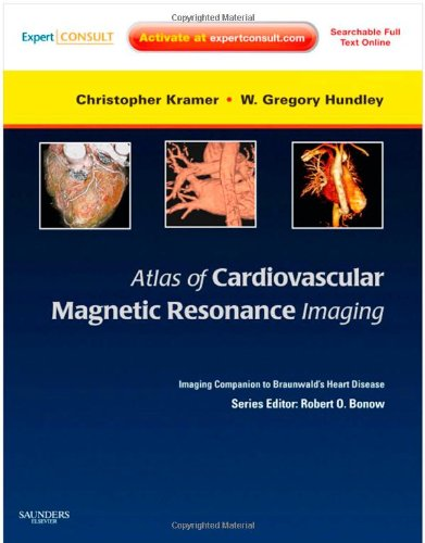 9781416061359: Atlas of Cardiovascular Magnetic Resonance Imaging: Expert Consult - Online and Print: Imaging Companion to Braunwald's Heart Disease, 1e (Imaging Techniques to Braunwald's Heart Disease)