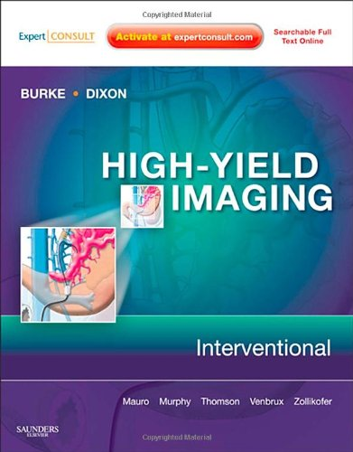High-Yield Imaging: Interventional: Charles Burke