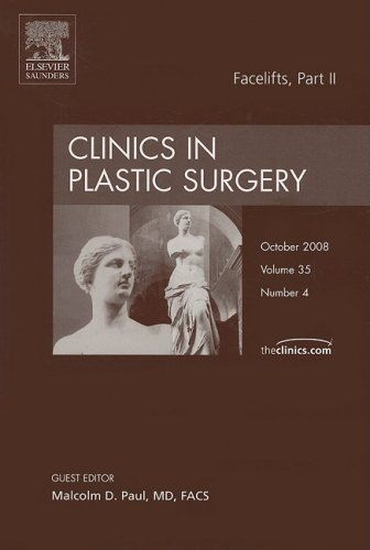 Facelifts, Part II, An Issue of Clinics: Paul MD, Malcolm