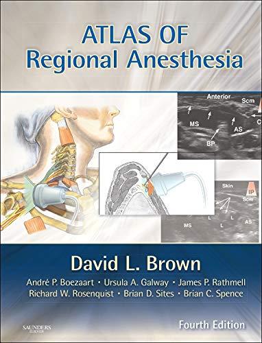 9781416063971: Atlas of Regional Anesthesia: Expert Consult - Online and Print, 4e (Expert Consult Title: Online + Print)