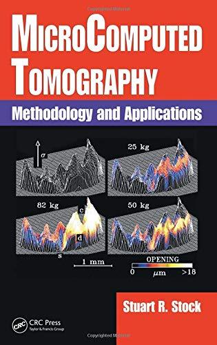 9781420058765: MicroComputed Tomography