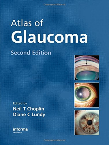 9781420077377: Atlas of Glaucoma, 2nd Edition