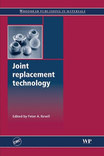 9781420079623: Joint Replacement Technology