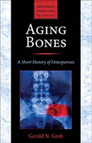 9781421413181: Aging Bones: A Short History of Osteoporosis (Johns Hopkins Biographies of Disease)