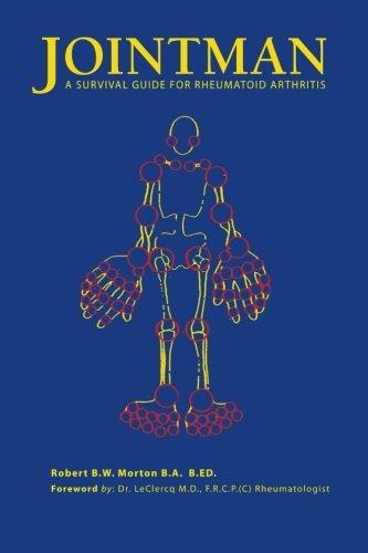 9781425110581: Jointman, A Survival Guide for Rheumatoid Arthritis