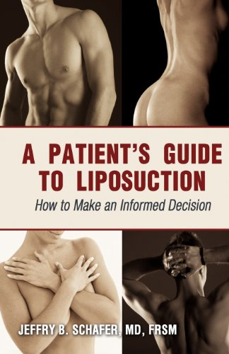 A Patients Guide to Liposuction: How to Make an Informed Decision: Jeffry B. Schafer