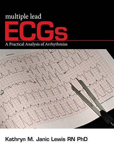 Multiple Lead ECGs: A Practical Analysis of: Kathryn M. Lewis