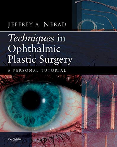 9781437700084: Techniques in Ophthalmic Plastic Surgery with DVD: A Personal Tutorial, 1e