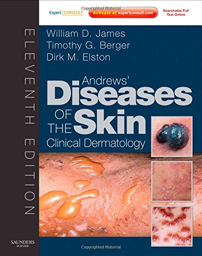 9781437703146: Andrews' Diseases of the Skin: Clinical Dermatology - Expert Consult - Online and Print, 11e (James, Andrew's Disease of the Skin)
