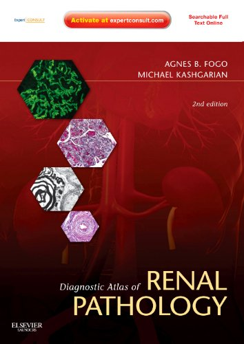 9781437704273: Diagnostic Atlas of Renal Pathology: Expert Consult - Online and Print, 2e
