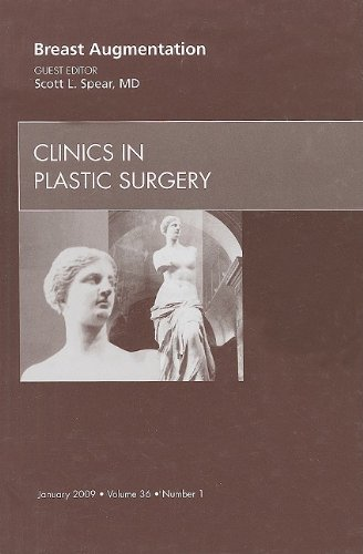9781437705287: Breast Augmentation, An Issue of Clinics in Plastic Surgery, 1e (The Clinics: Surgery)