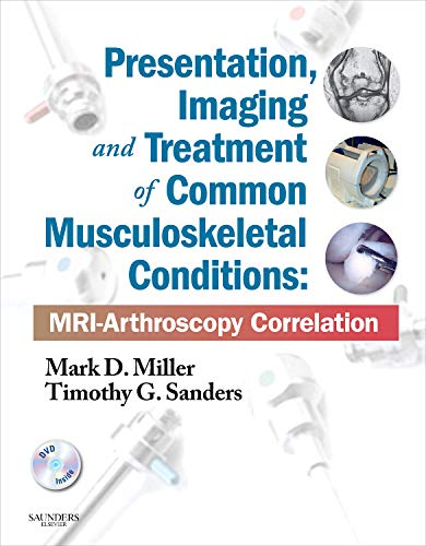 9781437709148: Presentation, Imaging and Treatment of Common Musculoskeletal Conditions: MRI-Arthroscopy Correlation (Expert Consult - Online and Print), 1e